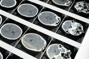 Finding Business Success After Traumatic Brain Injury